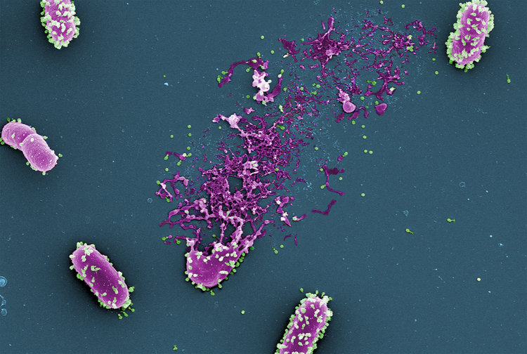 Electron microscopy image of a bunch of bacteriophages (in green) attacking and lysing a bacteria (in purple). This is happening all around you, all the time. Image credit: Helmholtz Centre for Infection Research, Braunschweig, Germany) and colorized by Dwayne Roach (Institut Pasteur).