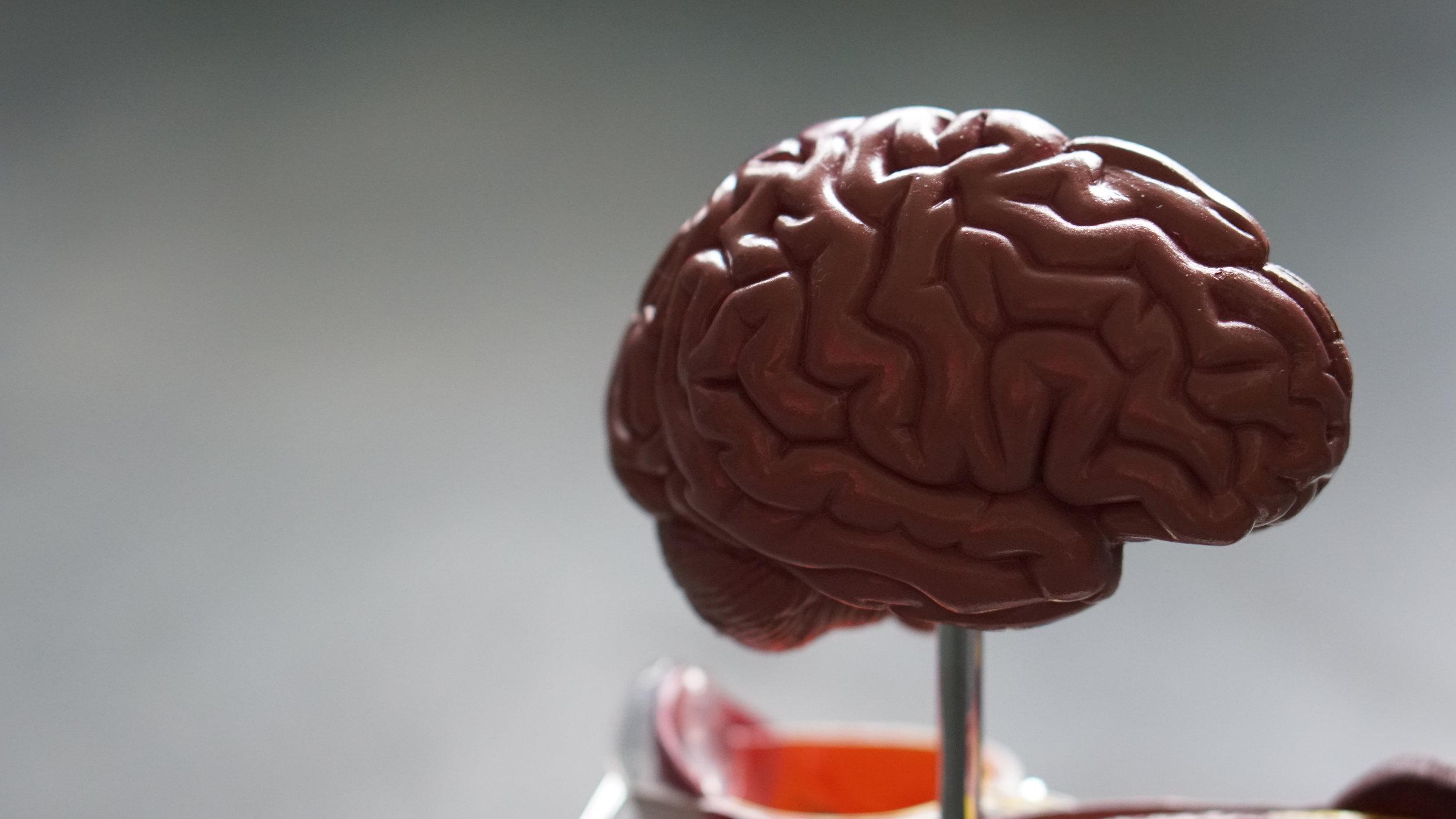 Brain in a dish -