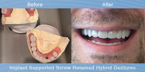 Dentures.jpg