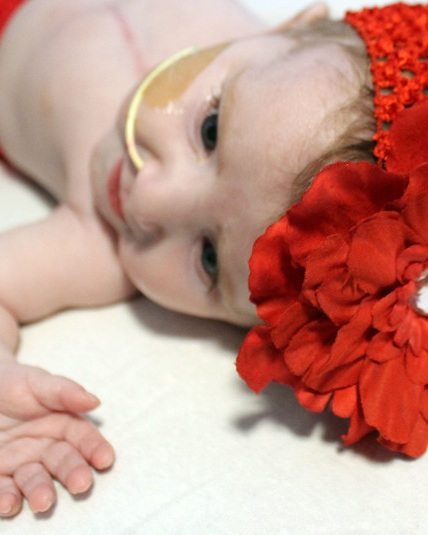 Our Story - Meet Adalyn. She was diagnosed with a Congenital Heart Defect 19 weeks gestation. Her heart did not fully develop on the left side along with a few other heart complications. Adalyn had her first heart surgery when she was ten days old. Her second heart surgery at four months old and she will need to have one more before she is 4 years old. Her defect is an example of one of the more severe heart defects. Doctors are able to help these babies make it to adulthood however it is unclear of the quality of life she will have beyond the age of 25 years old. The doctors and scientist are still not sure why these heart defects occur or how to prevent them. This is why we need your help. Congenital Heart Defect research is drastically underfunded and with your help we can find the answers we need to put an end to babies being born with heart defects.