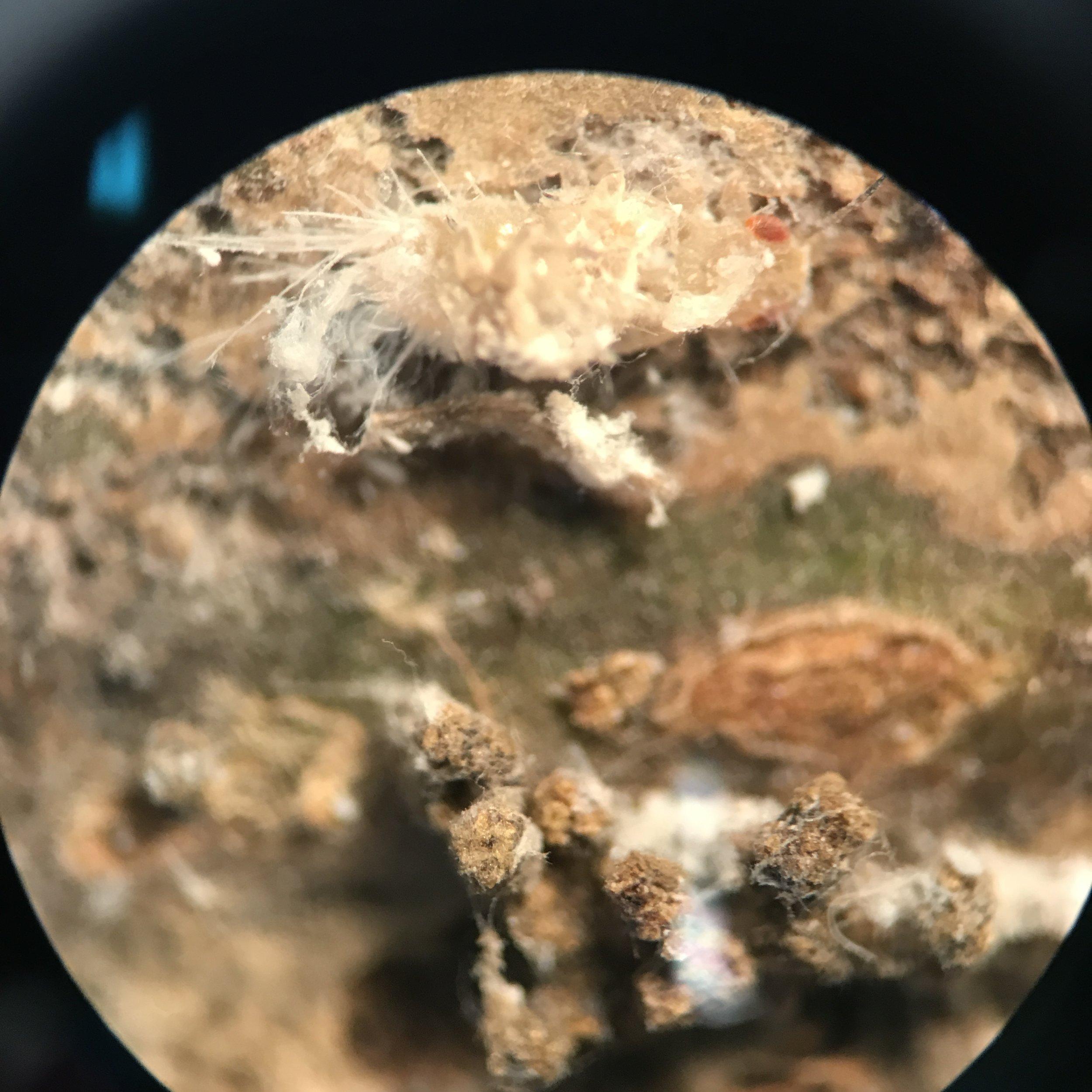 Microscope image of pest infestation.