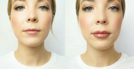 Lip Enhancement — Aesthetics Collective