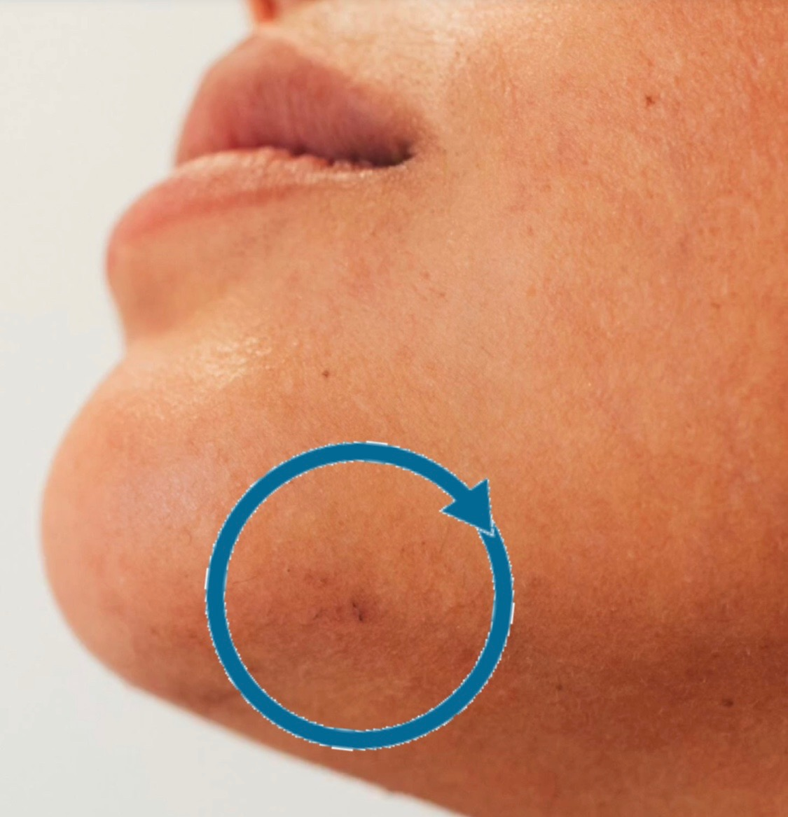 pcos hair removal picture circled
