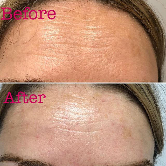 Before & after showing the beautiful & fabulous results clients get with softening of fine lines & wrinkles!🥰 #cosmeticacupuncture #happyclients #facialrejuvenation #finelinesandwrinkles #natural #nofilters #vegan #selflove #agingwell #facialacupuncture #celebritytreatment #bath #jessicalouisewellness #enhancemedispabath