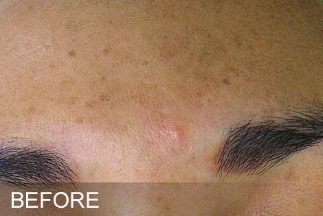 Brown-Spots-Before.jpg