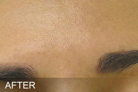 Brown-Spots-After.jpg