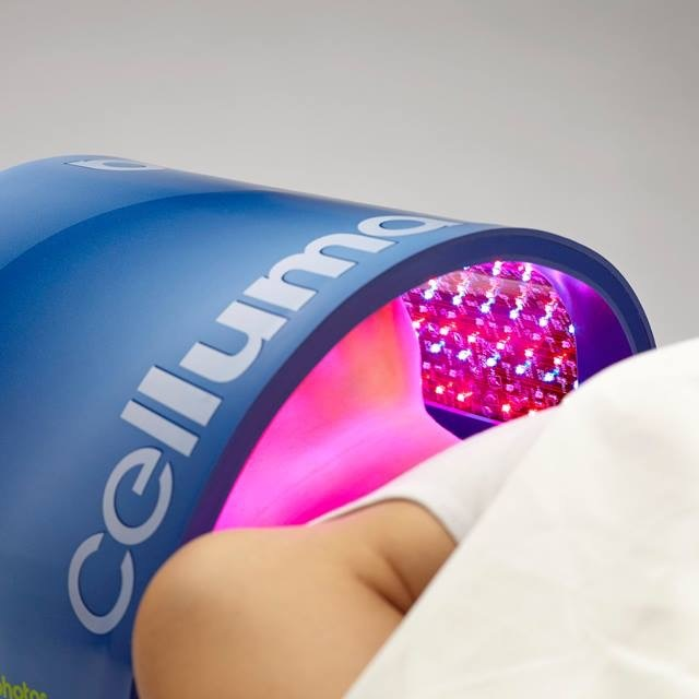 LIGHT THERAPY - Cleared by the FDA for pain management and skin care, Celluma LED treatments uses light energy to improve cellular health by accelerating the repair and replenishment of compromised tissue cells.15-minutes $15