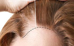 Hairline -