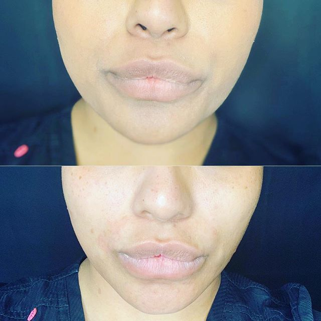 Need a little pick me up ? 20 minutes of micro current therapy ! Painless , easy , no downtime ! Check out these wonderful results , thank to our Aesthetician Starla , we can lift during our lunch hour .