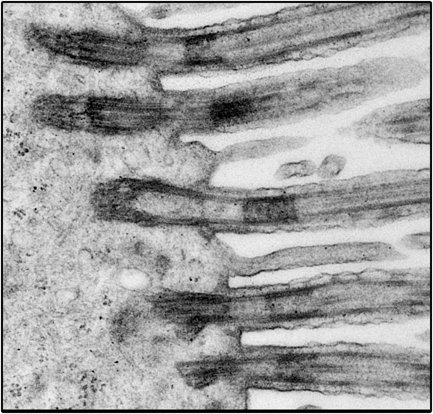 trachea tem.jpg