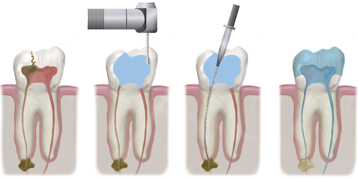 service-images-root-canal.png