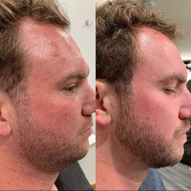 #Repost @fox_derm with @get_repost ・・・ Men don't like double chins either! Kybella is an injectable treatment that permanently destroys fat cells to reduce a double chin. The number of treatment sessions varies depending on the amount of fat requiring treatment and desired results. Come see me for a Kybella consultation! @the_skinritual @desert_sky_derm