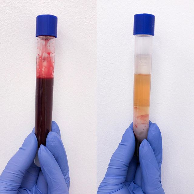 Liquid gold is the only way ✨ . Platelet Rich Plasma (PRP) is a portion of your own blood that is drawn and spun in a centrifuge, which then separates the blood into 3 components: Red blood cells, Poor platelet plasma, and Platelet Rich plasma. . PRP is highly concentrated with natural growth factors and healing properties, which makes it great for using as the ultimate anti-aging treatment! . Using PRP with microneedling is the most popular way to incorporate it into your skin care treatments and has many benefits, such as: ➕Increasing cell turnover ➕Diminishing fine lines and wrinkles ➕Shortens downtime and speeds up the healing process of your treatment ➕Highly increases collagen and elastin production ➕Treats discoloration in the skin ➕Reduces the appearance of pores ➕Evens and smooths skin texture ➕Reduces stretch marks . PRP is also amazing for hair restoration when injected into the scalp, can be injected also into other parts of the face for helping to increase collagen, and can be microneedled into other parts of the body besides the face. . A series of at least 3 spaced out 4-6 weeks apart is highly recommended for the best results! I always recommend 6 when treating acne scarring and discoloration ✨ . #dermaplane #skintips #instabeauty #clearskin #beautygram #facemasks #acnetips #dermaplaning #oilyskin #gilbertaz #skincarejunkie #hydrafacial #antiaging #prp #microneedling #dermalinfusion #aesthetician #skintip #beautyhaul #exfoliation #microneedling #facials #dryskin #blackheads #extractions #skinhacks #girlquotes