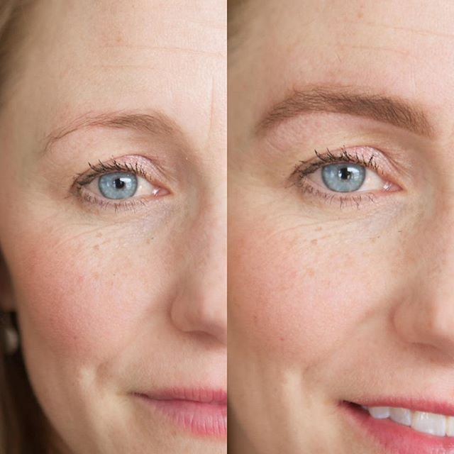 Think you have sad brows? Think again!!! Ahh I love what we do so much!! Look how much hair she had that you just couldn't see! That is what a tint can do! Also yes we customize the color to match your true brow color perfectly. Can you also see how the wax and shaping completely opens up her eyes! Brows really are that important and make that much of a difference 💥