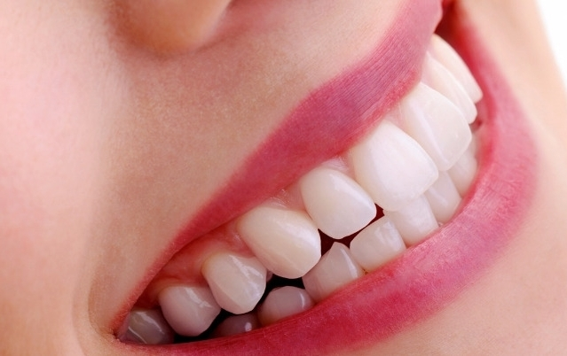 TFD-lady-dental-teeth-whitening-london.jpg