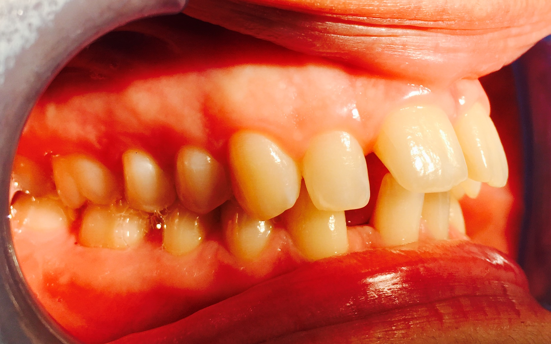 Fixed braces in london - before.jpg