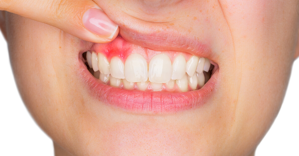 toothache-2.jpg