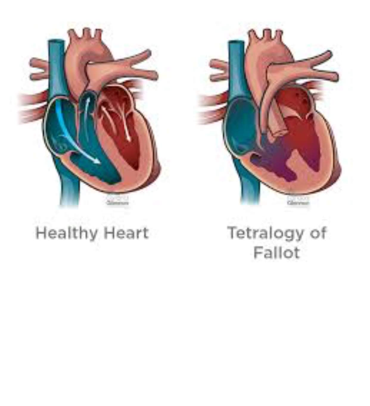 tetralogy of fallot heart image