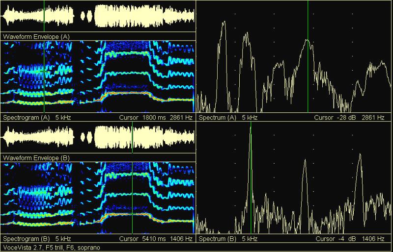 Spectrumanalyse is een veelgebruikte methode om stemgeluid te analyseren.