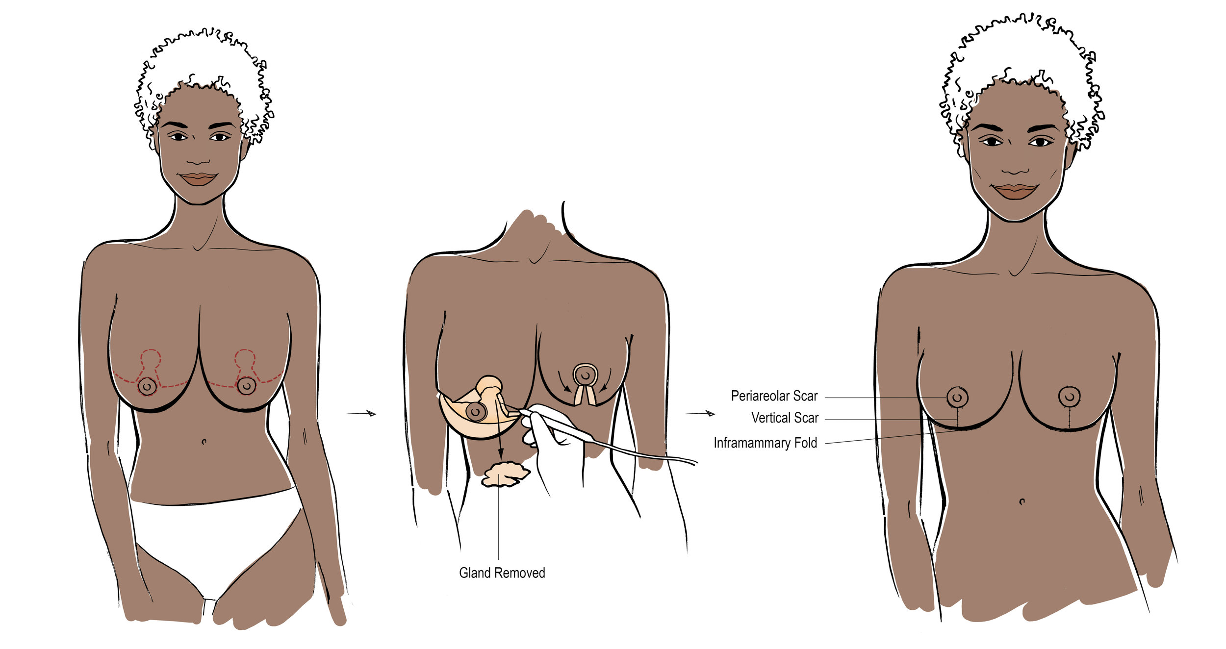 breast reduction, reduction mammaplasty