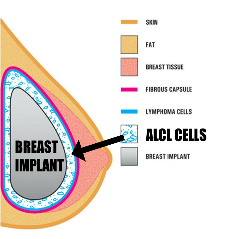 ALCL Cells are located between the breast implant and its surrounding capsule.