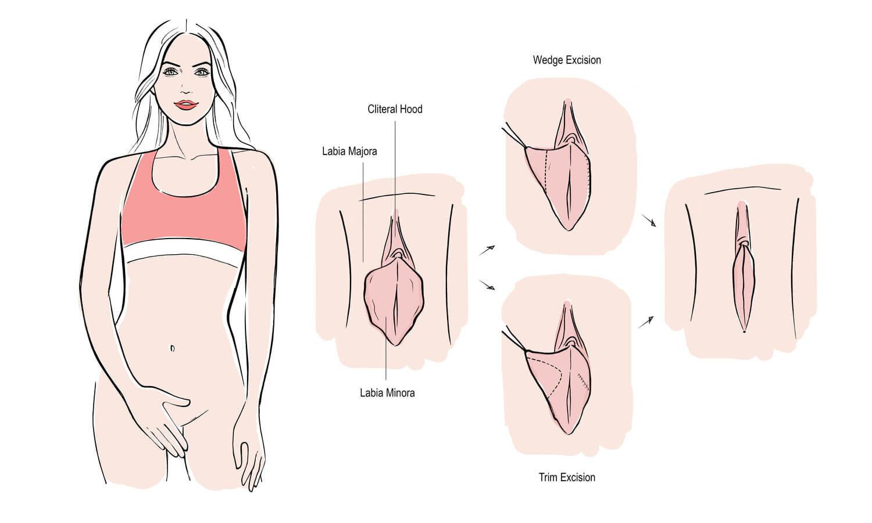 Labiaplasty NJ: Vaginal Rejuvenation — Alexis L. Parcells MD