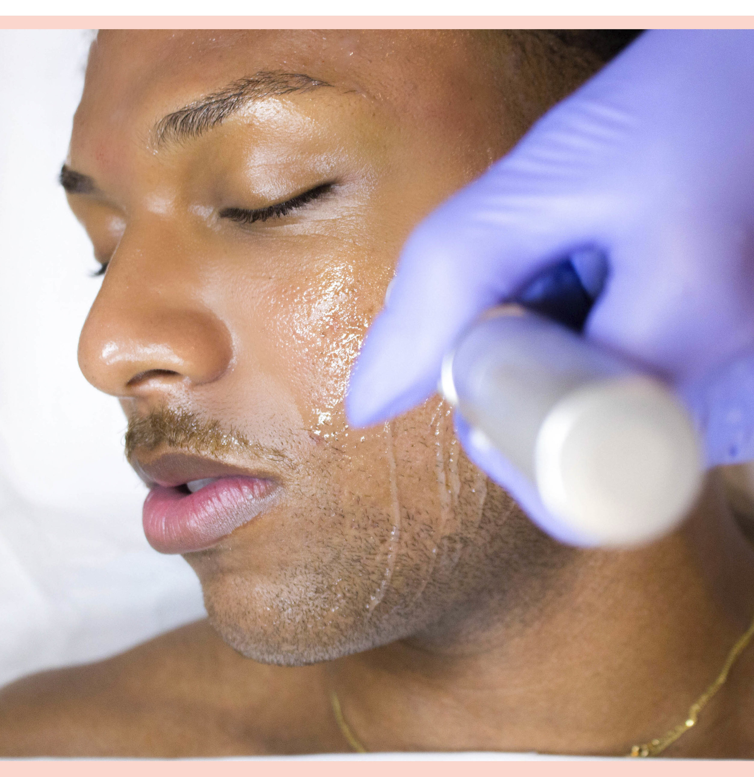 How does it work? - The process is simple; starting with a blood draw, the blood is than spun down in order to separate the plasma, than the PRP is injected back into your skin. This can be a safe and natural alternative to fillers and other skin rejuvenation procedures.The Eclipse MicroPen uses a sterile needle-tip containing 12 tiny micro-needles to create controlled micro-injuries to the skin. These micro-channels created by the treatment allow for optimal absorption of the Platelet Rich Plasma (PRP), enhancing their effects in the deeper layers of skin. The PRP has a concentration of platelets in the blood that are crucial to wound healing and during skin rejuvenation. PRP releases growth factors into the skin to expedite the body's own repair process and stimulate new collagen and elastin. Patients typically notice an immediate glow, but visible improvement will take about 2-4 weeks and can continue for up to 6 months. A series of 4-6 treatments spaced 6 weeks apart is ideal for optimal results.