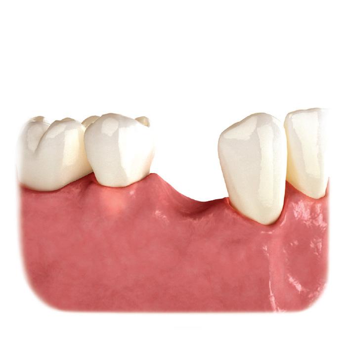 Pérdida del diente sin tratamiento.