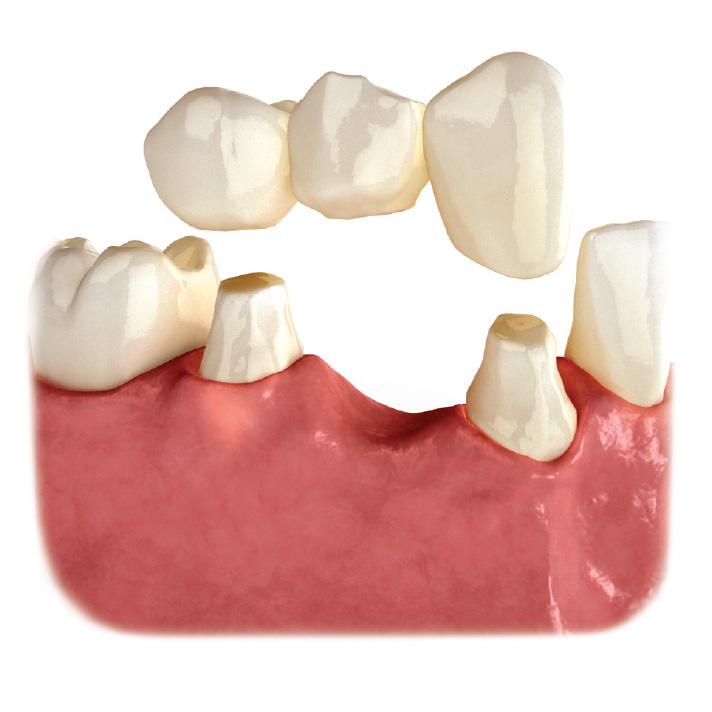 Puente y coronas tradicionales sobre dientes naturales tallados.