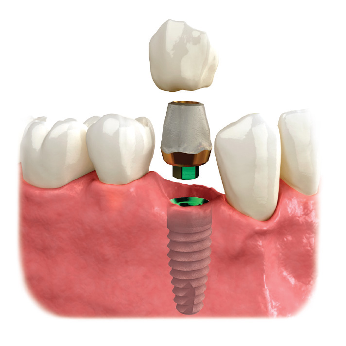 Corona sobre implante dental.