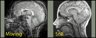 - Here is a picture of a brain. Can you notice a difference? Which picture looks better?
