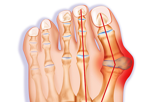 Bunions - What are they?