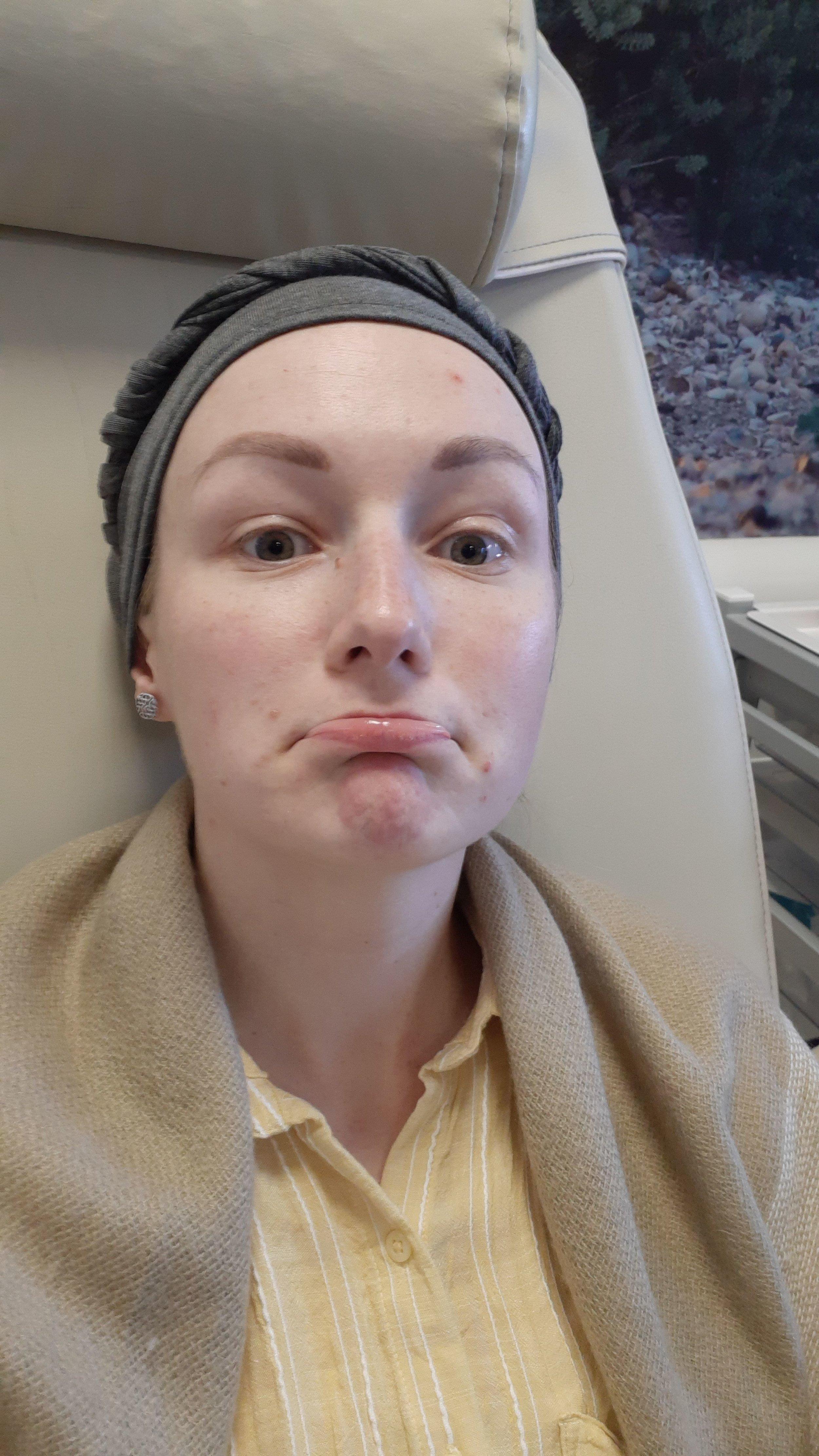 Jade at chemotherapy