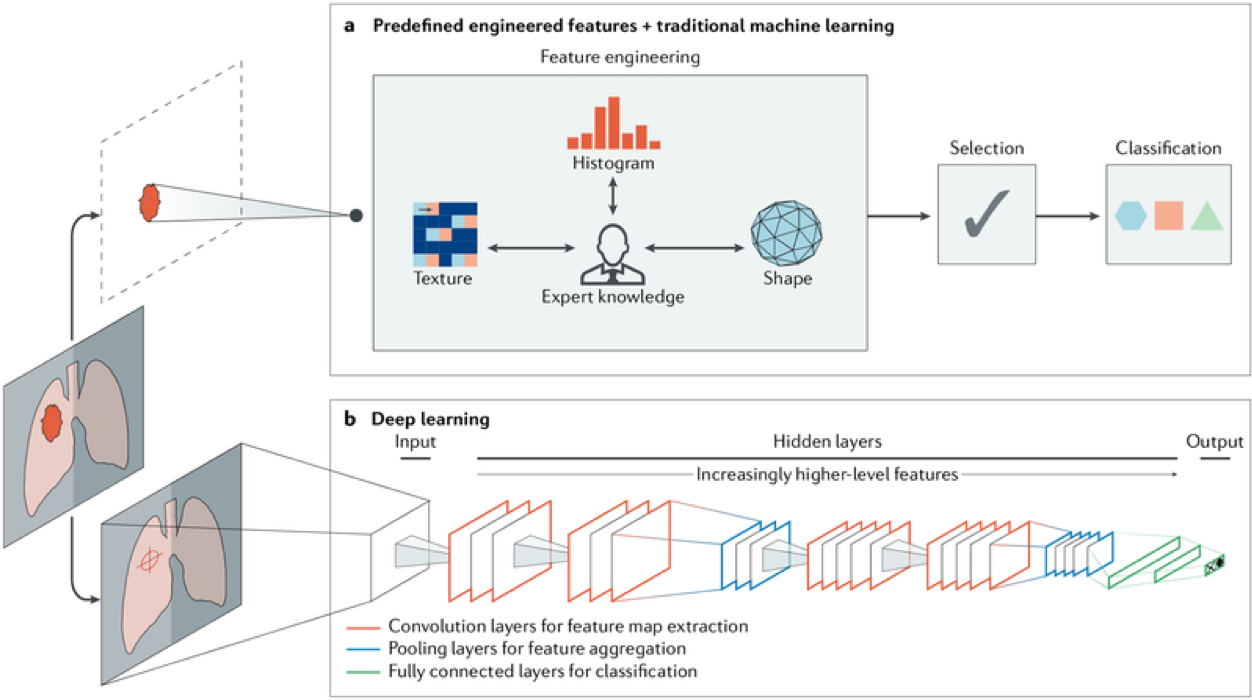 Artificial intelligence methods in medical imaging.   This schematic provides an outline for two AI methods for classifying image data, when diagnosis objects as either benign or malignant. a) The first method uses features of cancer extracted from regions of interest on the basis of expert knowledge. Such features include tumour volume, shape, texture, intensity and location. From this the most robust features become machine learning classifiers i. b) The second method relies on deep learning and does not require annotating of specific regions, but has knowledge of the types of tumours based on localisation. The neural network has several layers that enable classification to be learnt during training - this is very much the model Microsoft's Inner Eye system is based upon.  https://www.ncbi.nlm.nih.gov/pmc/articles/PMC6268174/#BX1