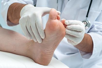 29766672_L_Scleroderma_Toes_Doctor_Feet_Examine.jpg