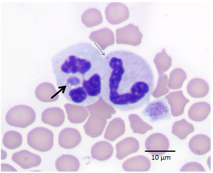 Wright-Giemsa-stained peripheral blood smear of Anaplasma phagocytophilum