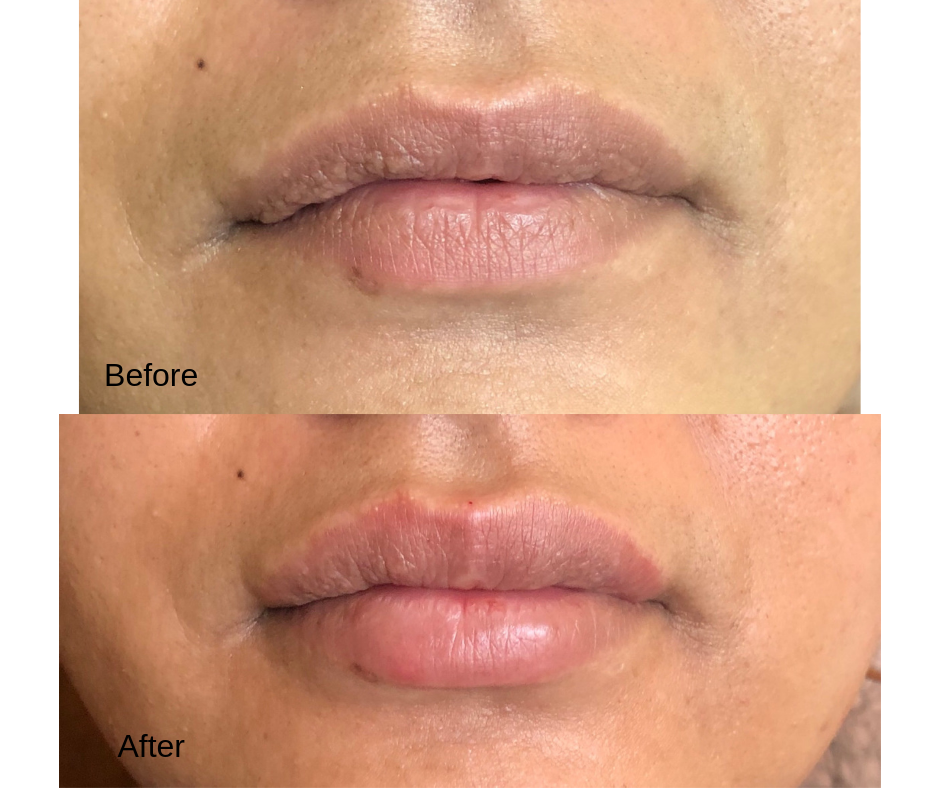 Juvederm and Restylane Logo