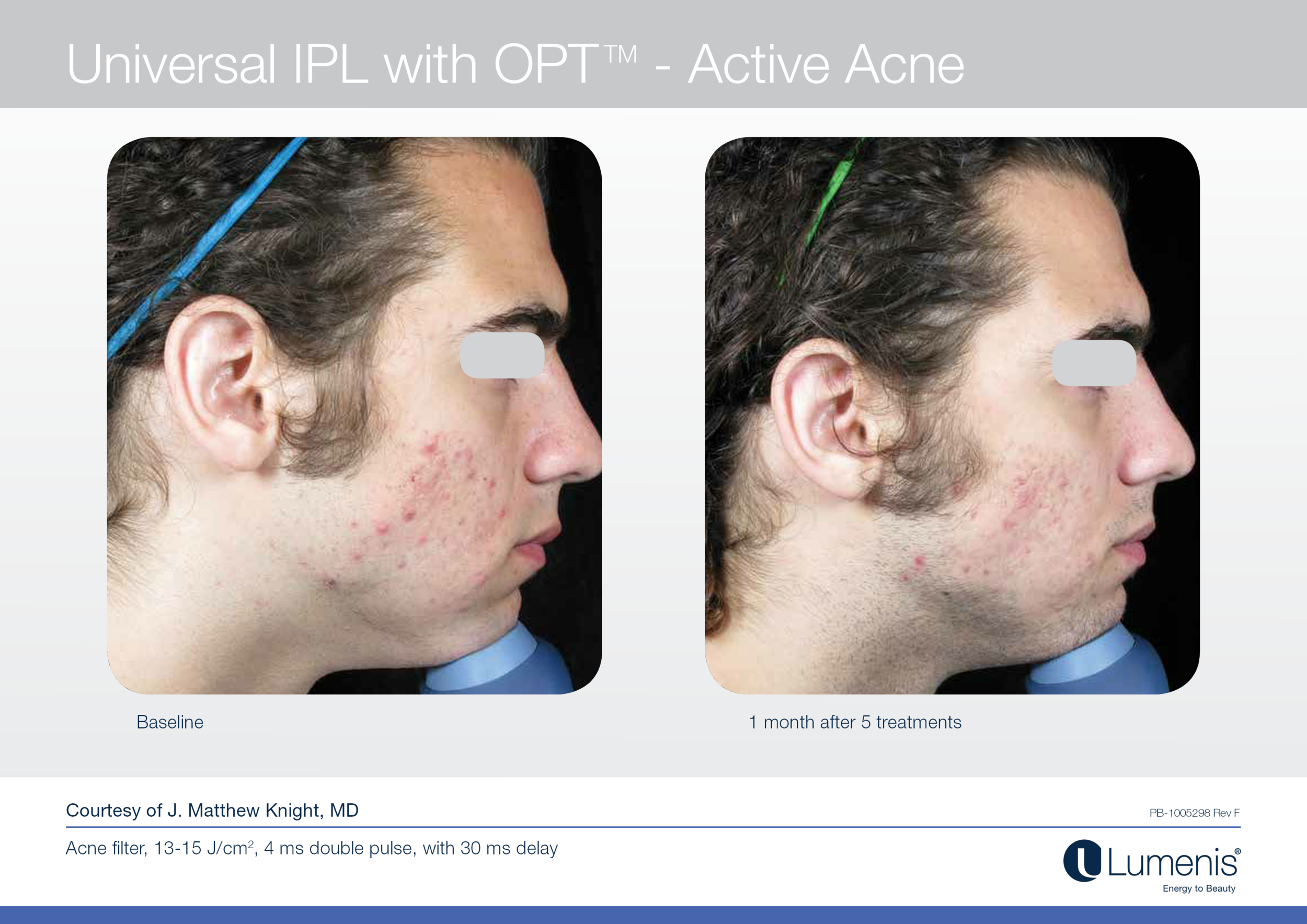 Acne Reduction Treatments