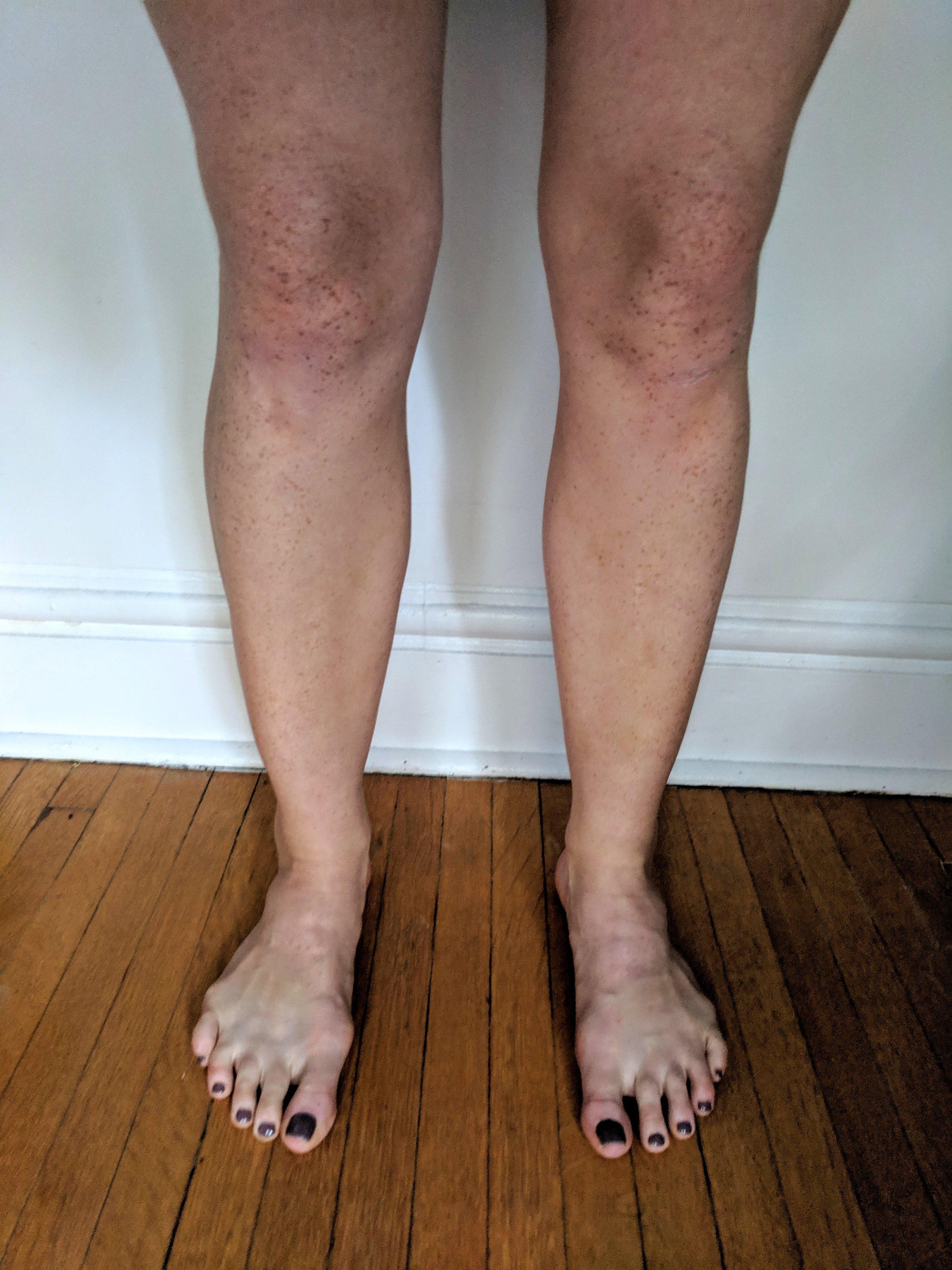 My weird knees.