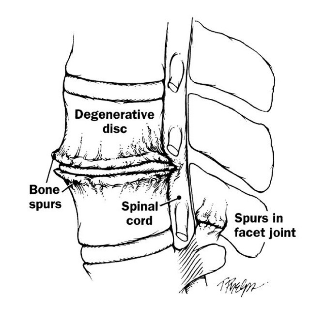 spine_ddd_bone-spurs_disc_spinal-cord_integrated-brain-and-spine-center-for-functional-neurology-and-medicine_integrated-physicians-medical-group.jpg