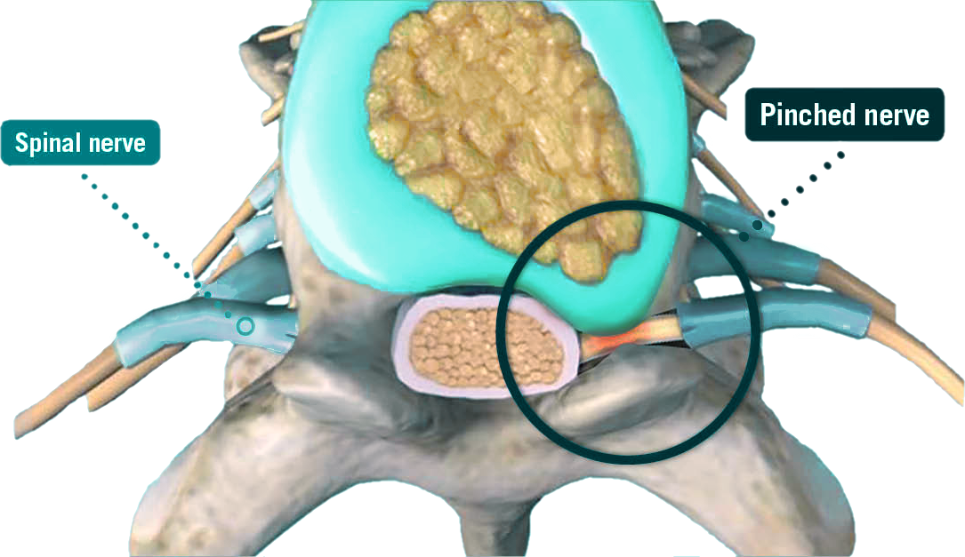 pinched-nerve_integrated-physicians-medical-group_the-integrated-brain-and-spine-center-for-functional-neurology-and-medicine.png