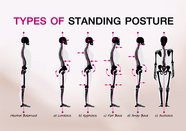 types_of_posture_fit3d.png