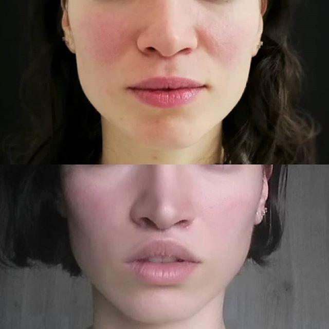 #beforeandafter : let the beauty of your lip blossom with the #liplift 👄 . Le savez-vous : le lip lift ou le lifting des lèvres est une intervention qui permet de remonter la lèvre supérieure. . #lips #liplift #lipscare #surgery #chirurgieesthetique #beforeafter #levrespulpeuses #levres #levresuperieure #chirurgieparis #parisaestheticsurgeryinstitute #paris #institutedefrance #beauty #facecare