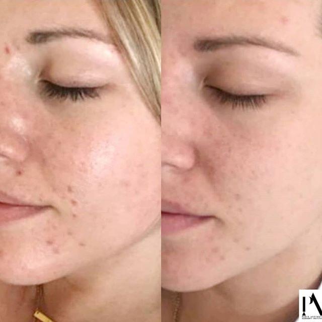 """#avantaprès #microneedling #2seances """"Je voulais soigner mon acné et estomper mes cicatrices"""" . Très en vogue en ce moment, le microneedling permet de corriger le vieillissement cutané, améliore la qualité de la #peau et à venir à bout de certaines imperfections comme les pores dilatés, les cicatrices ou même les vergetures. . #microneedling #visage #face #acne #vergeturesaurevoir #selfface #facecare #conseilsbeauté #beautytips #beauty #hydratation #nettoyageenprofondeur #nettoyage #peaupropre #hyperpigmentation #exfoliation #soinsvisage #soin #soinapaisant #cicatrices #peausaine #soinsesthetiques #parisaestheticsurgeryinstitute #parisinstitut #france #beforeandafter"""