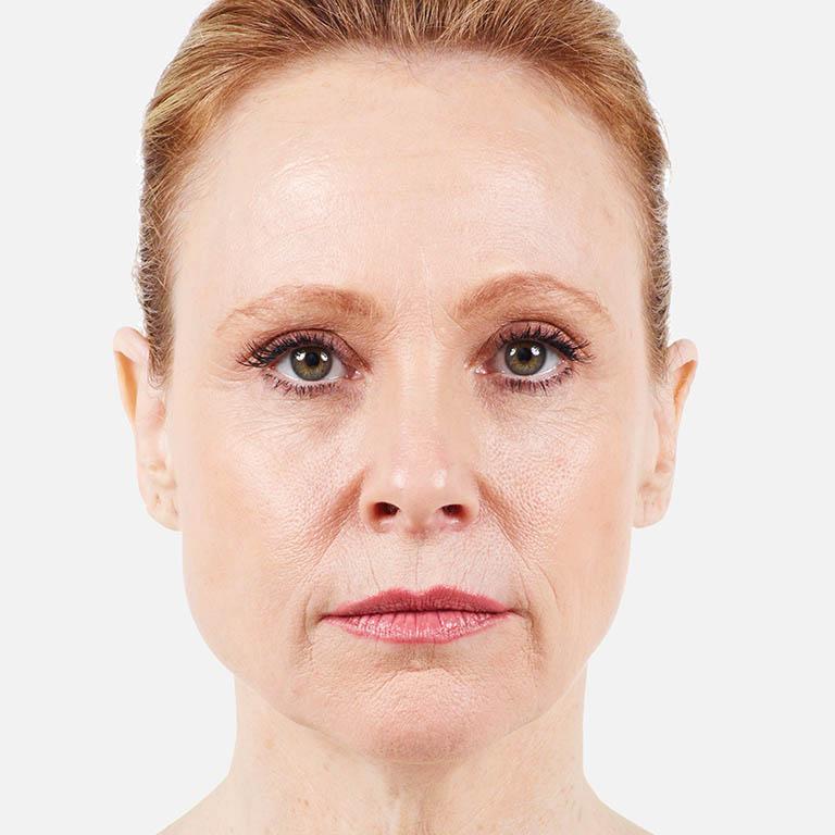 Upper Lip Wrinkles