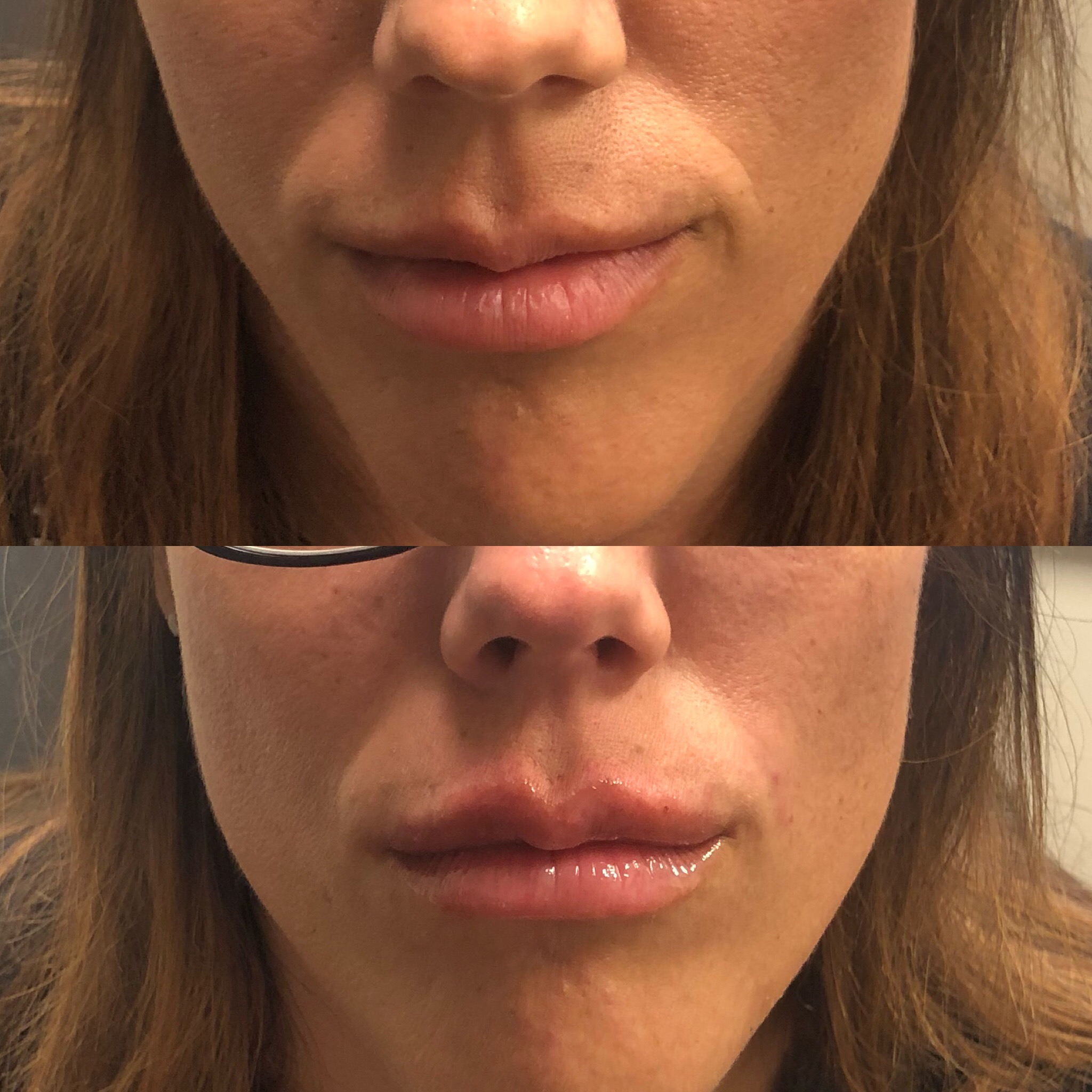 Lip enhancement with Restylane-L