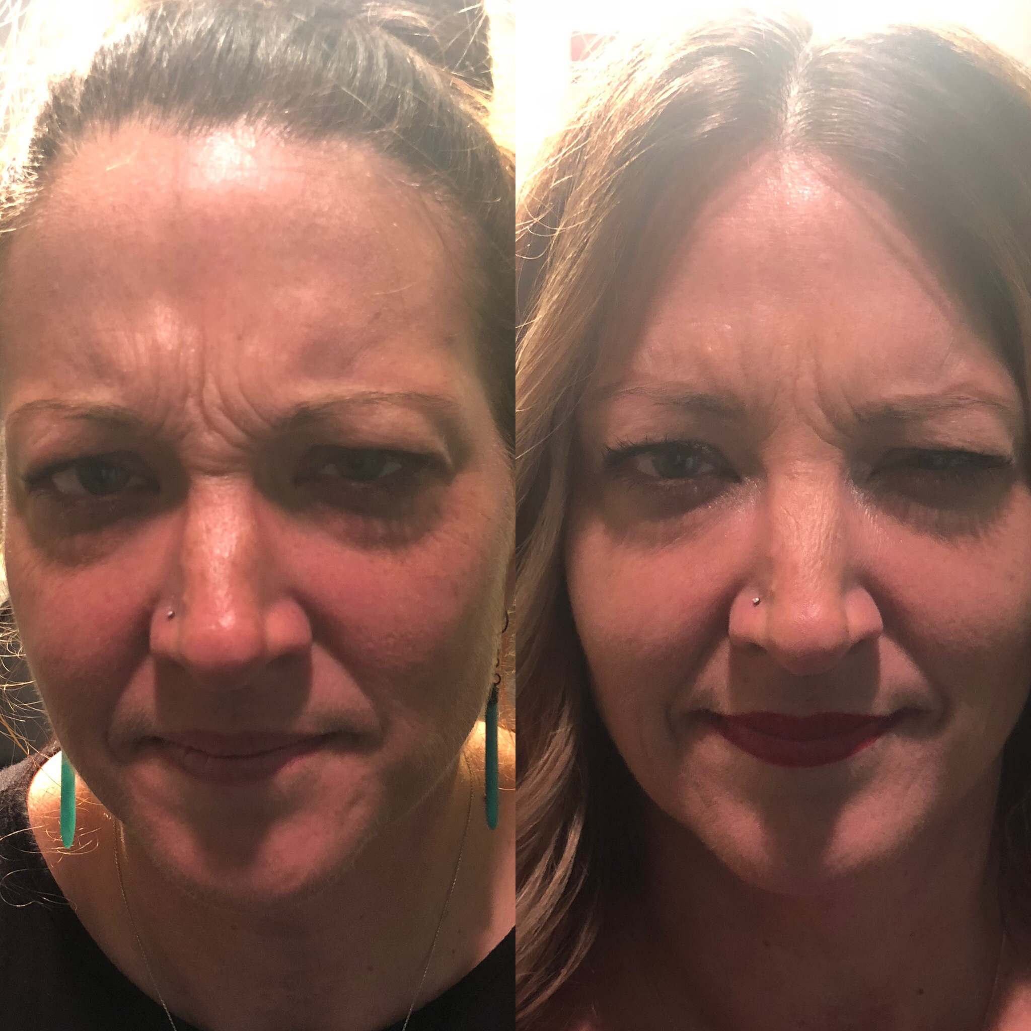 Frown Line (Glabella) treatment after one week with Dysport