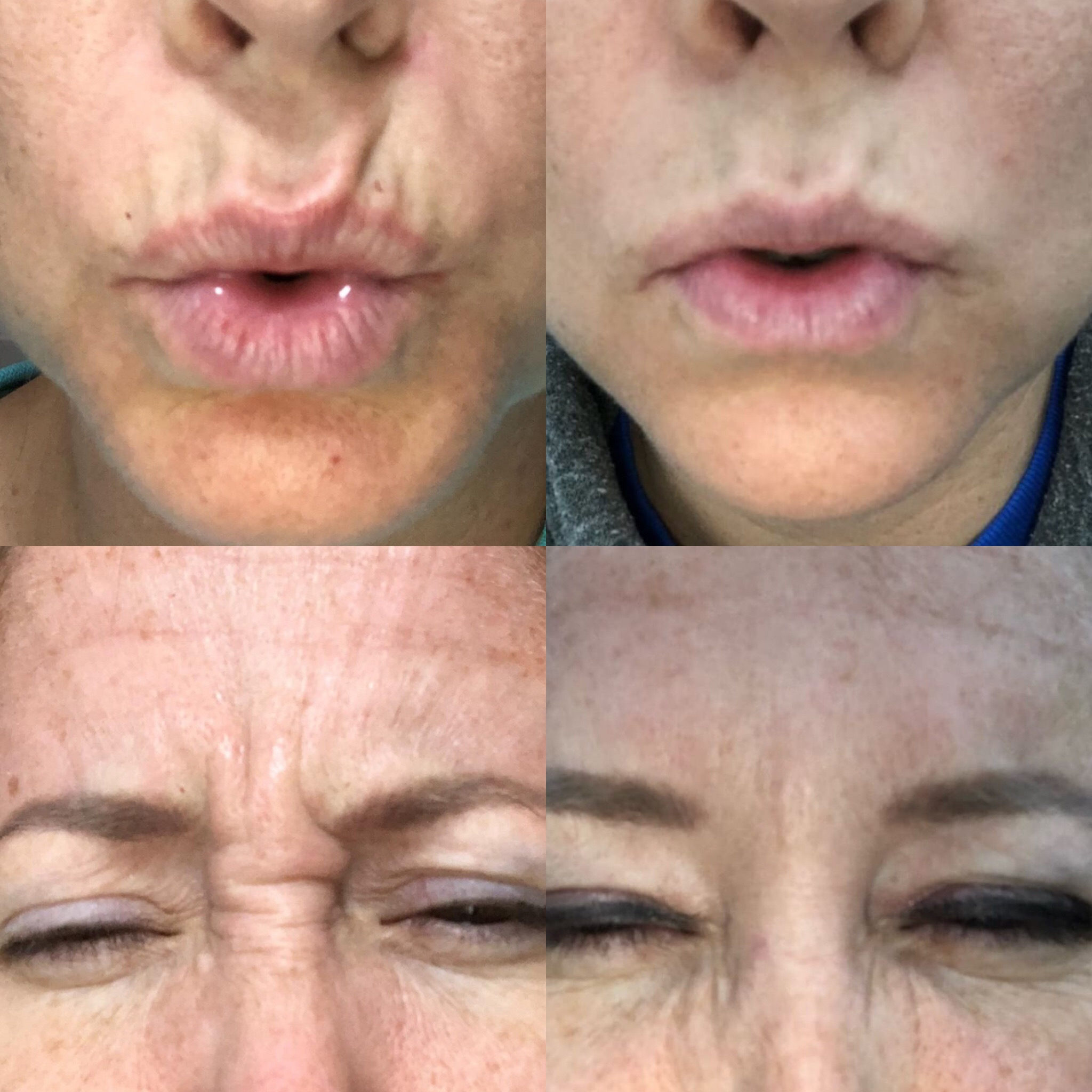 Verticle lips line and frown line treatment with Botox