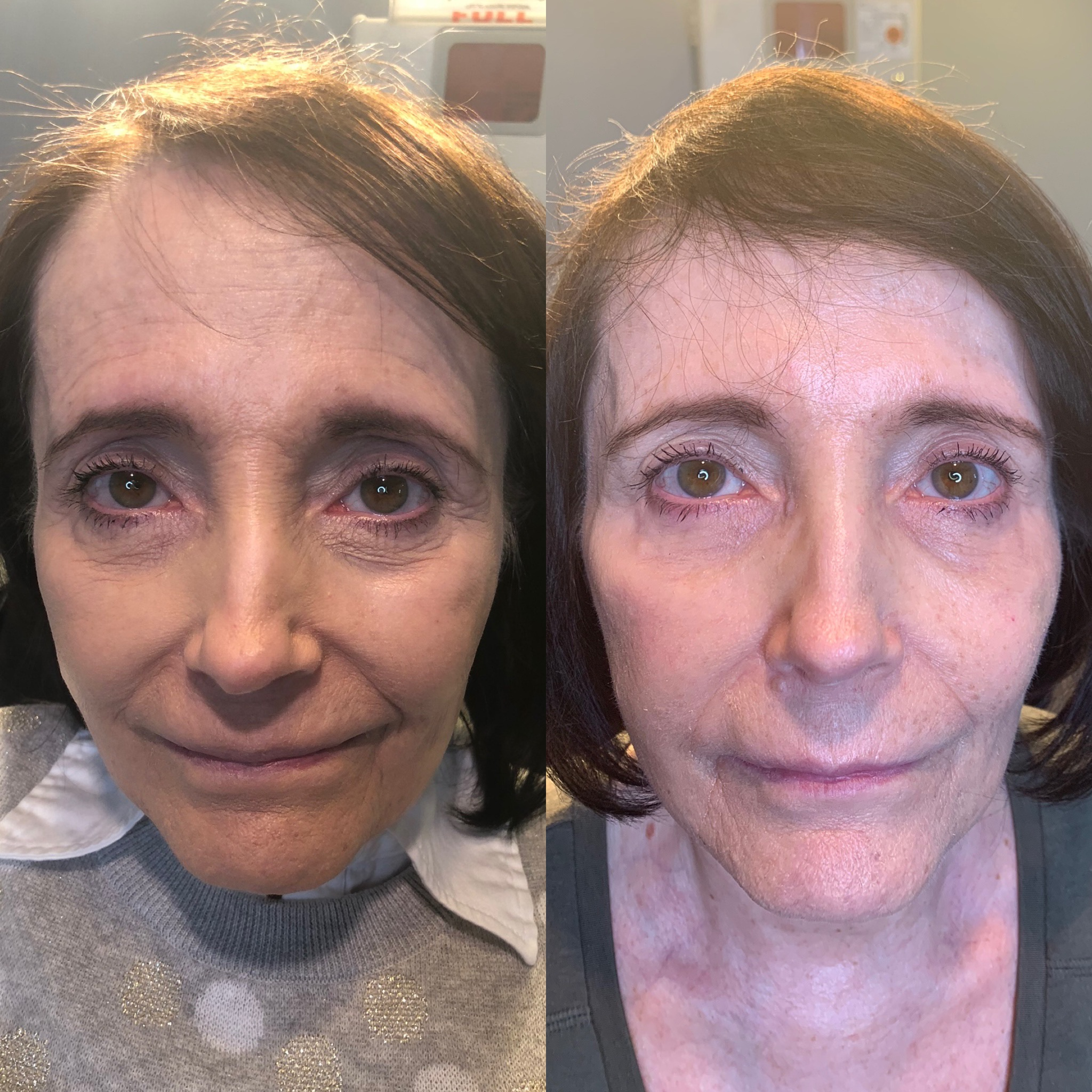 The Injectible Facelift