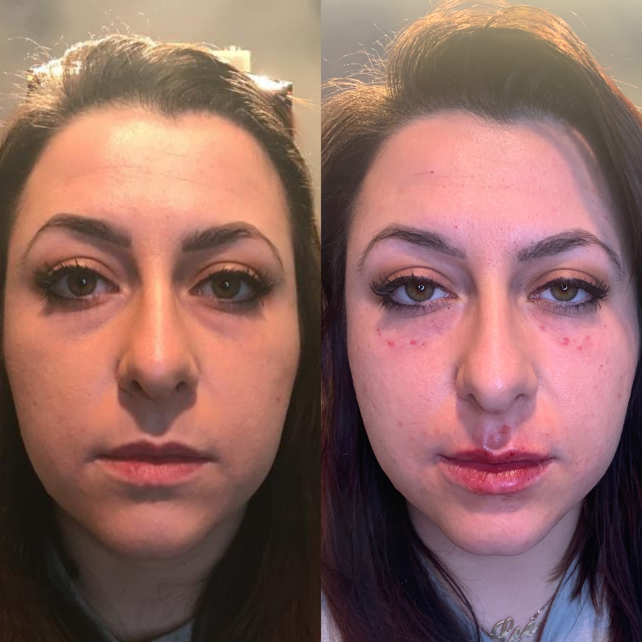 Tear Troughs and lips with Restylane (Immediate results!)